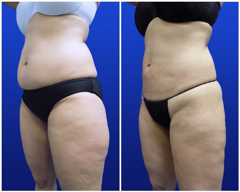 liposuction-jan24-a