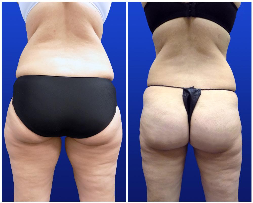 liposuction-jan24-b