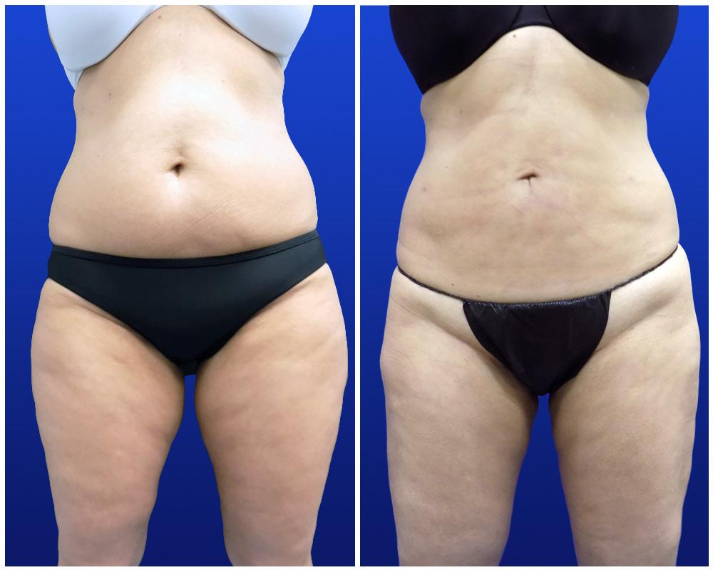 liposuction-jan24-c