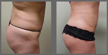 liposuction_01