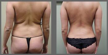 liposuction_02