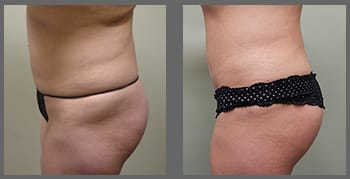 liposuction_03