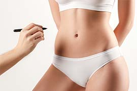 Liposuction Milwaukee | Dr  Rosett - Brookfield, Wi